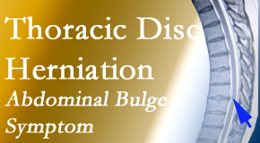 Most Chiropractic Clinic cares for thoracic disc herniation that for some patients prompts abdominal pain.