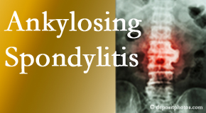 Ankylosing spondylitis is gently cared for by your Murfreesboro chiropractor.