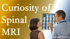 Murfreesboro MRIs for spinal stenosis may be revealing…or puzzling.