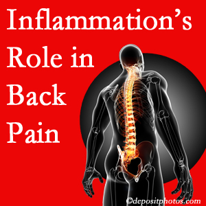 The role of inflammation in Murfreesboro back pain is real. Chiropractic care can manage it.