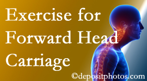 Murfreesboro chiropractic treatment of forward head carriage is two-fold: manipulation and exercise.