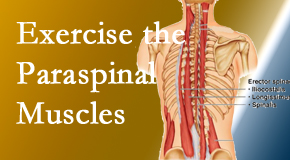 Most Chiropractic Clinic explains the importance of paraspinal muscles and their strength for Murfreesboro back pain relief.