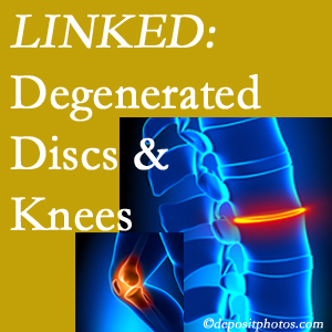 Degenerated discs and degenerated knees are not such unlikely companions. They are seen to be related. Murfreesboro patients with a loss of disc height due to disc degeneration often also have knee pain related to degeneration.